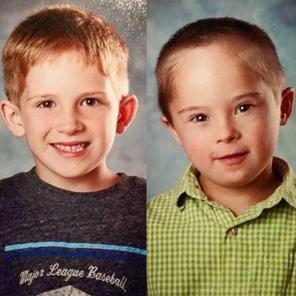 Cặp anh và em trai bị Down khiến cả thế giới xúc động